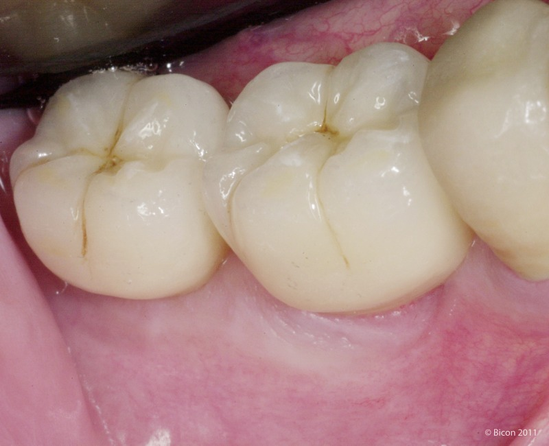 Restoration Of Two Mandibular Molar Short Implants With