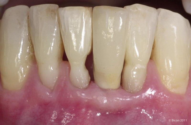 Extra Oral Cementation Of A Left Mandibular Central