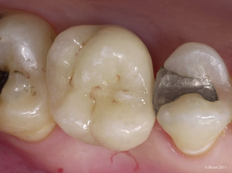 Restoration On A Maxillary First Molar Bicon Case Study