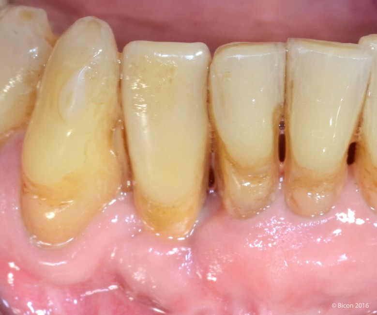 Placement And Restoration Of A 3 0 X 6 0mm Short Implant In A