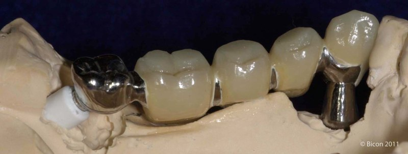 Five Unit Polyceramic To Metal Mandibular Telescopic