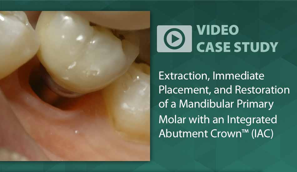 Video Case Study: Restoration of Mandibular Molar with Integrated Abutment Crown