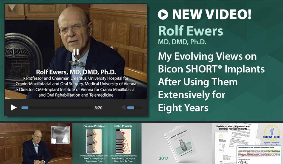 My Evolving Views on Bicon SHORT® Implants After Using Them Extensively for Eight Years – Prof. DDr. Rolf Ewers
