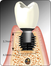 Bicon Dental Implants | Short Implants | History of Bicon Short ...