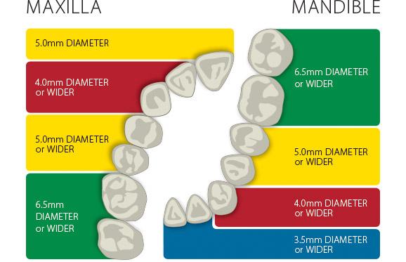 Bicon Dental Implants